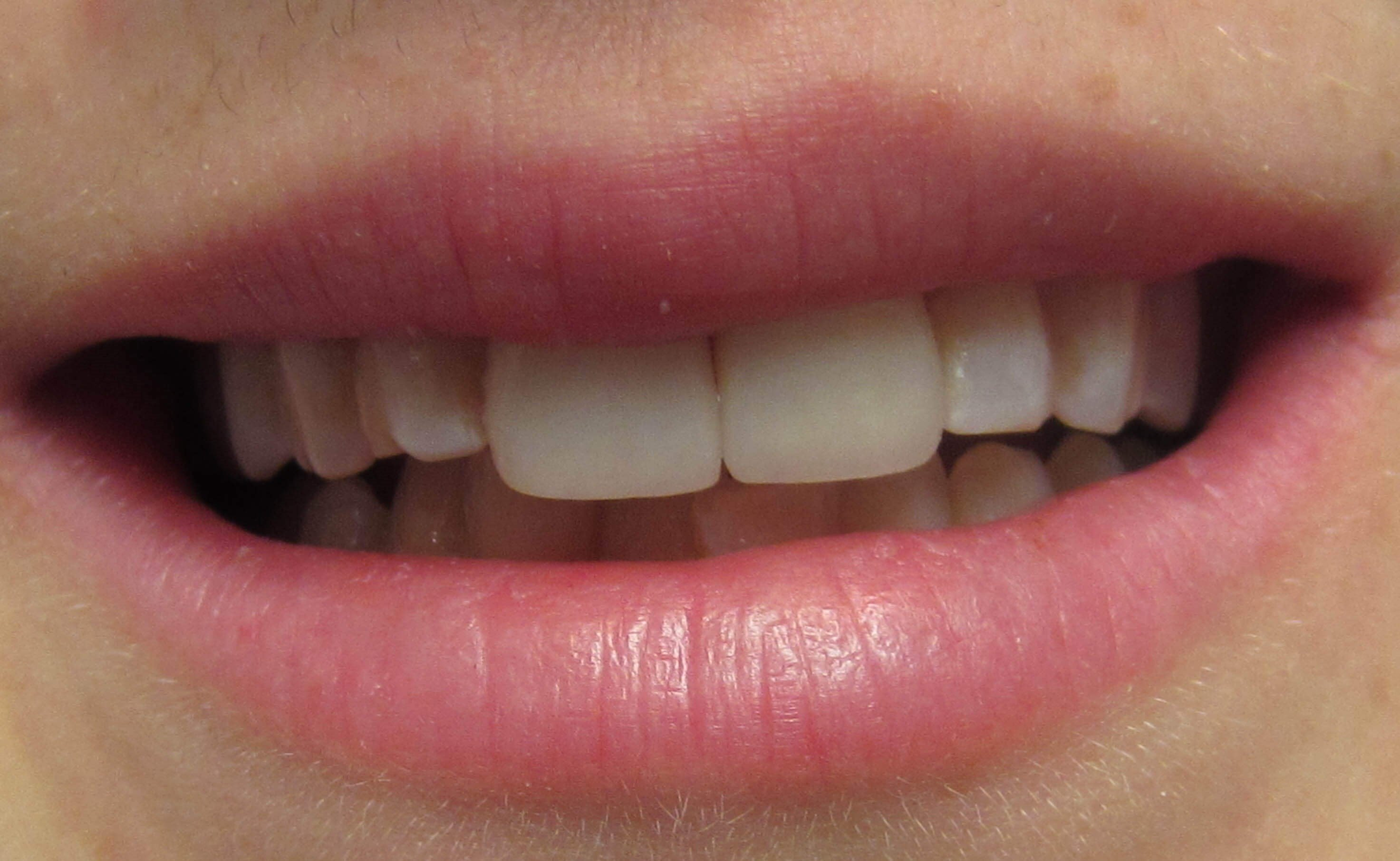 Veneer Before and After After