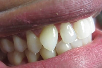 Invisalign Before