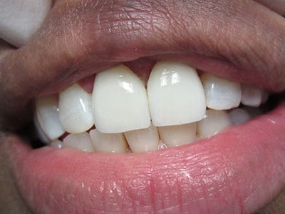 Porcelain Crowns After