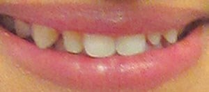Smile Makeover Before