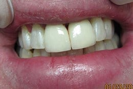 Porcelain veneers After