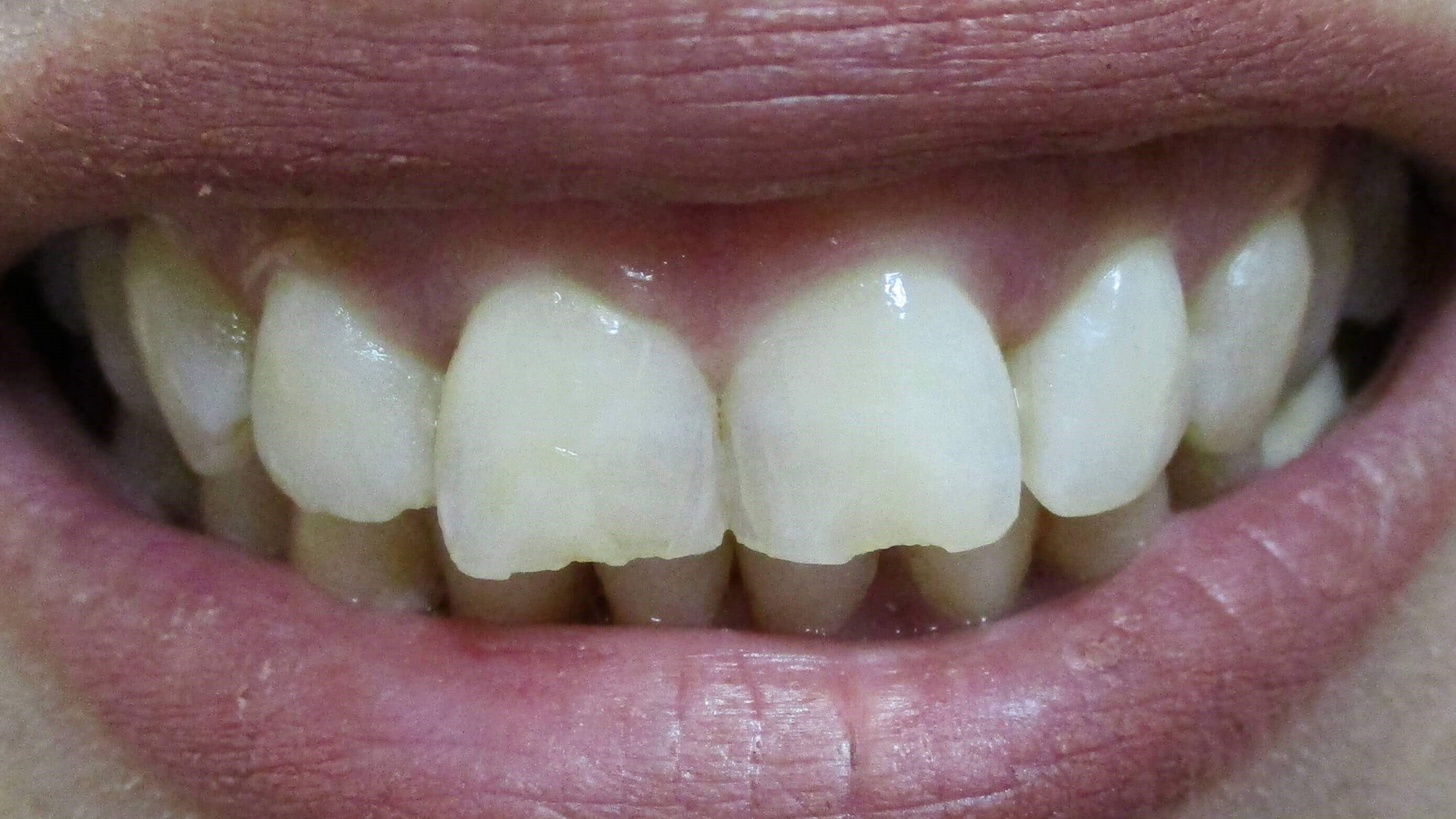 Veneers Before /After Smile Before