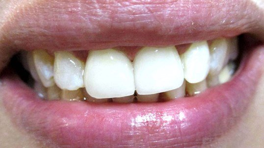 Veneers Before /After Smile After