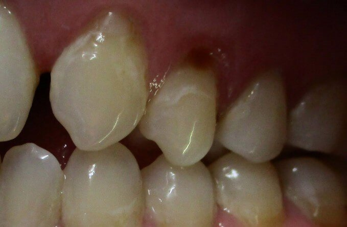 Pinhole Gum Surgery Before