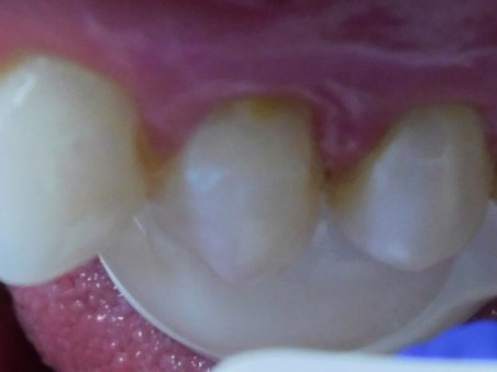 Pinhole Gum Surgery After