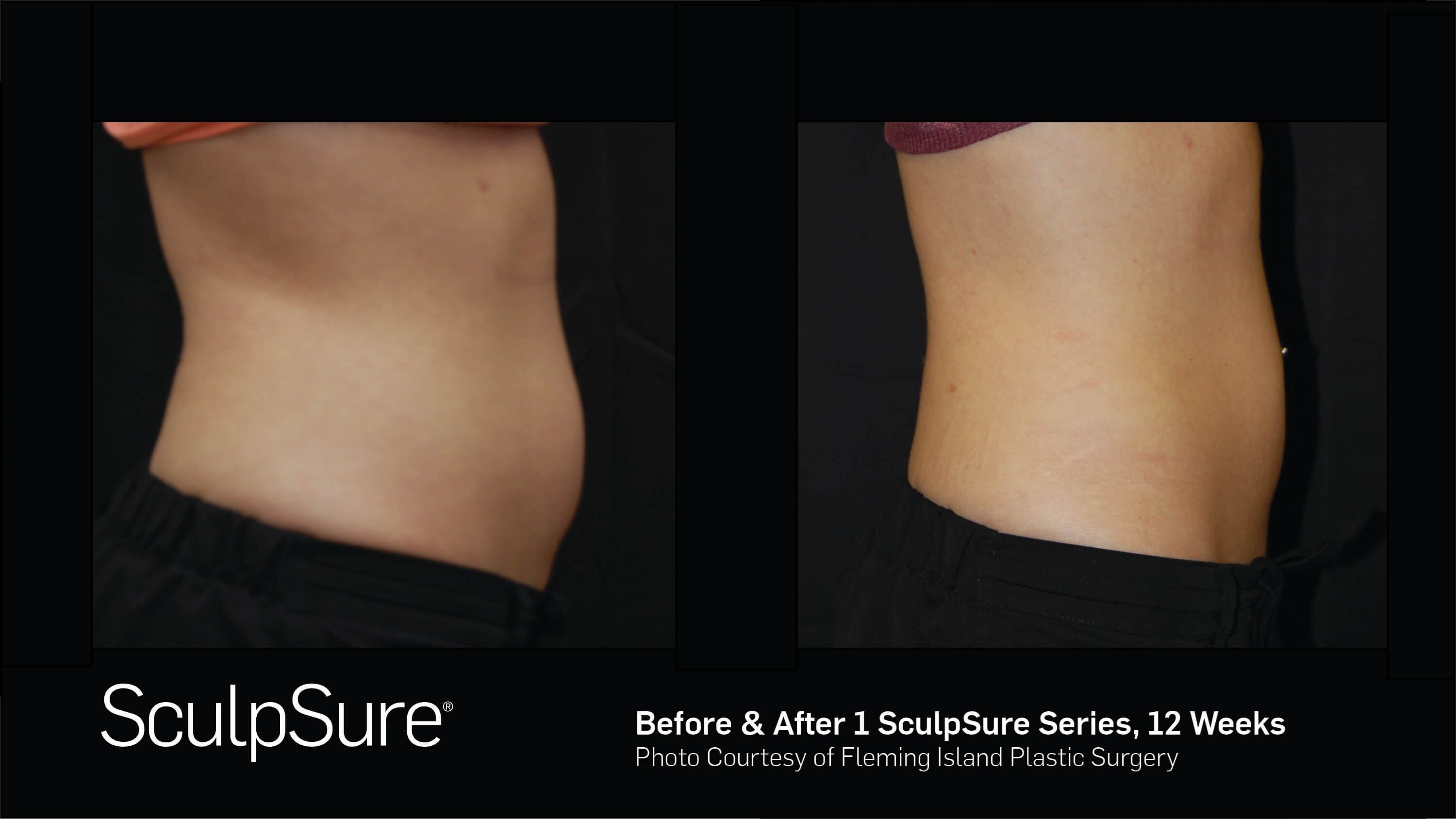 Before & After SculpSure R. Lateral View SculpSure