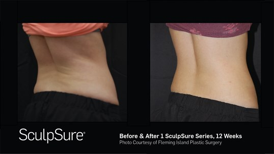 Before & After SculpSure R. Flanks SculpSure