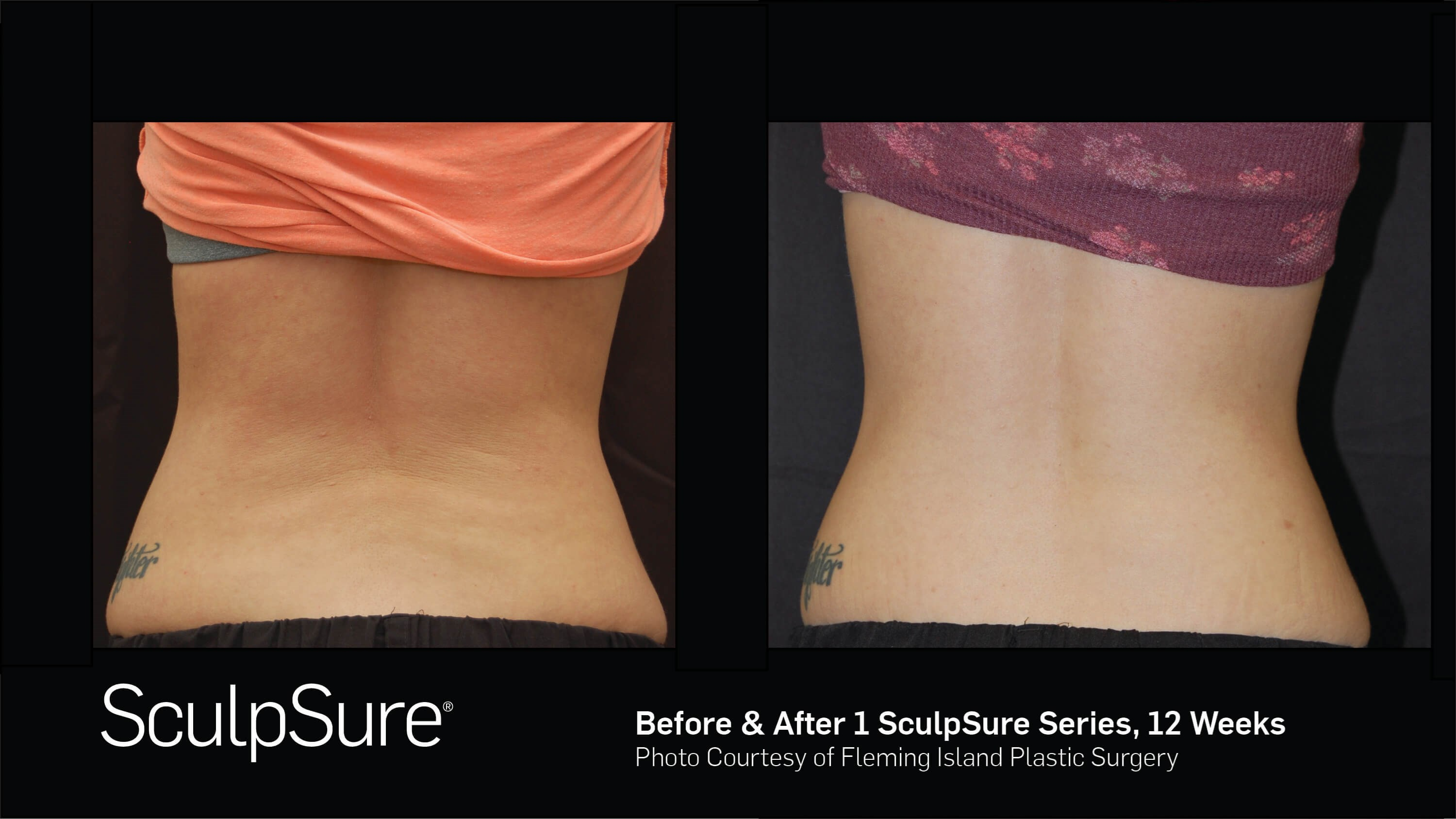 Before & After SculpSure Posterior View SculpSure