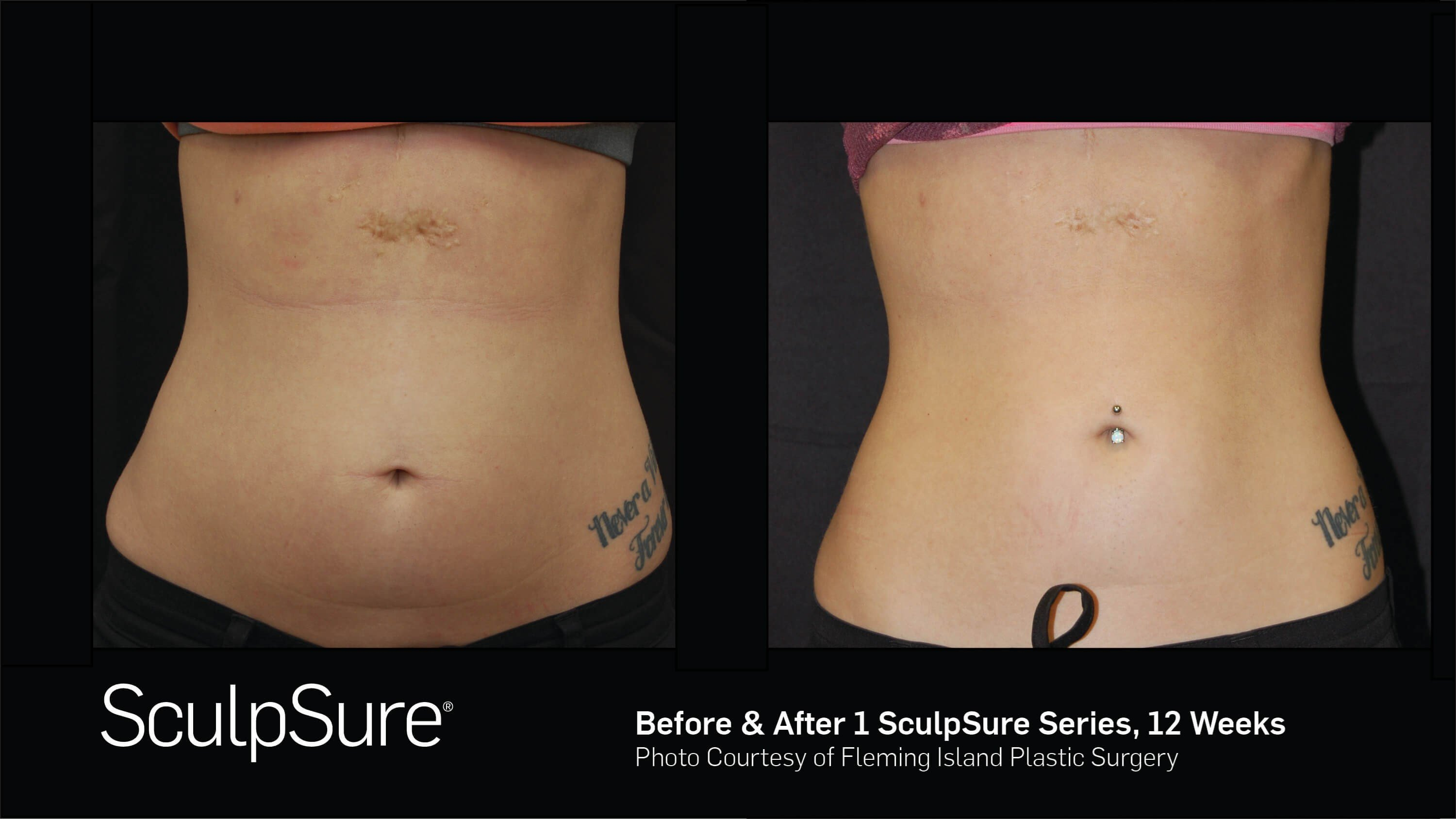 Before & After SculpSure Anterior View SculpSure