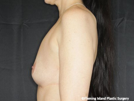 L. Lateral View Before Implants