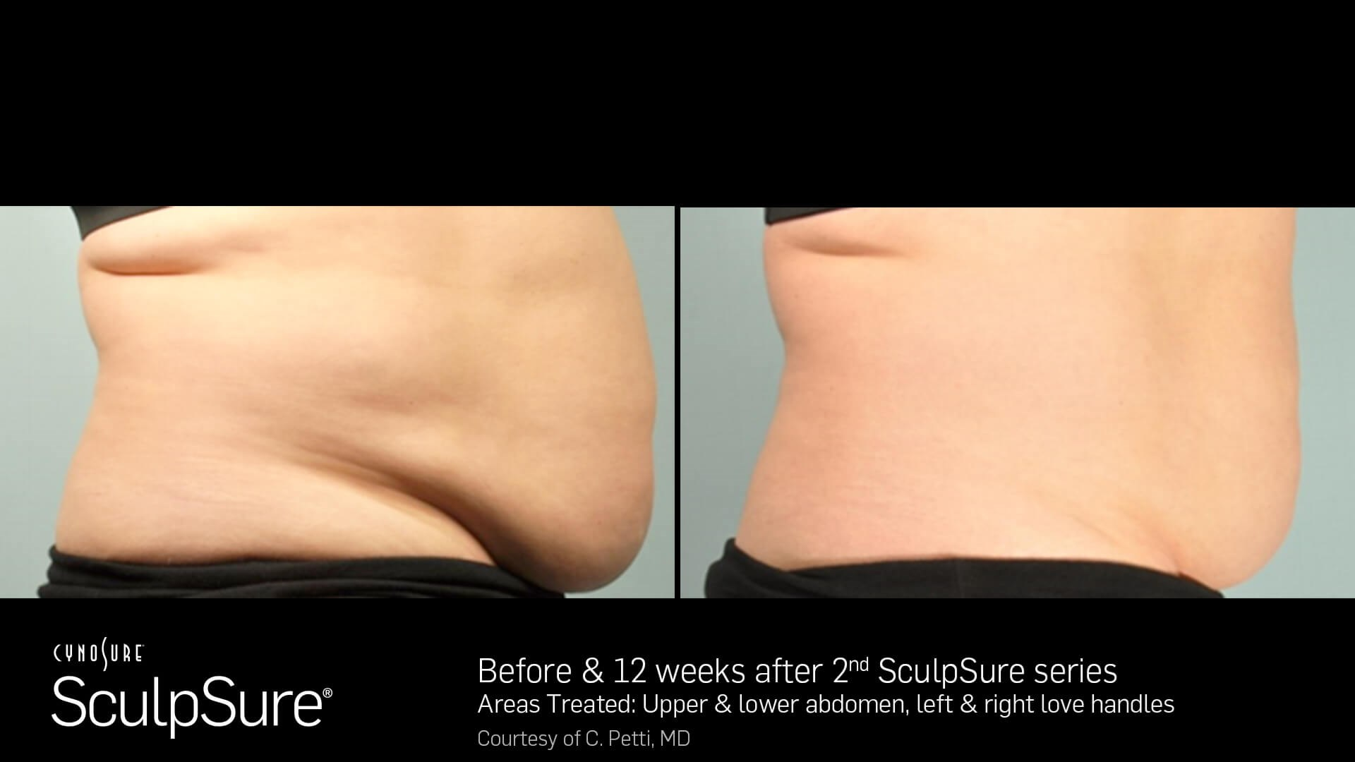SculpSure Tummy & lovehandles Before