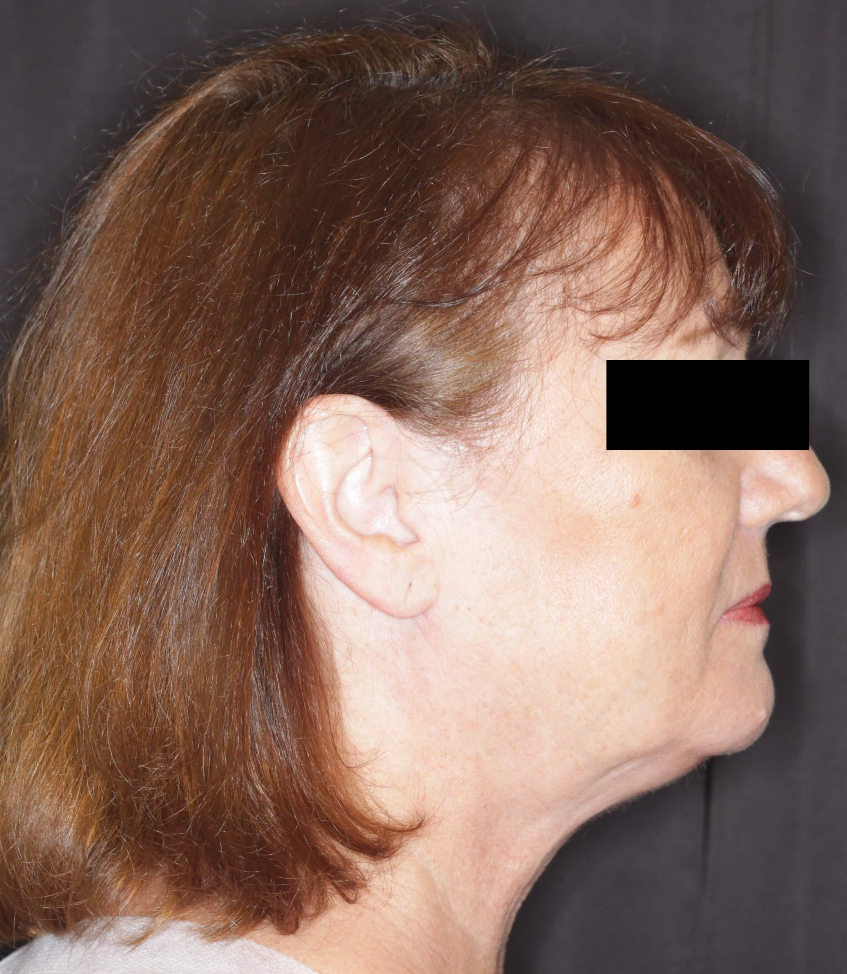 JPlatzy Face Lift Renuvion After