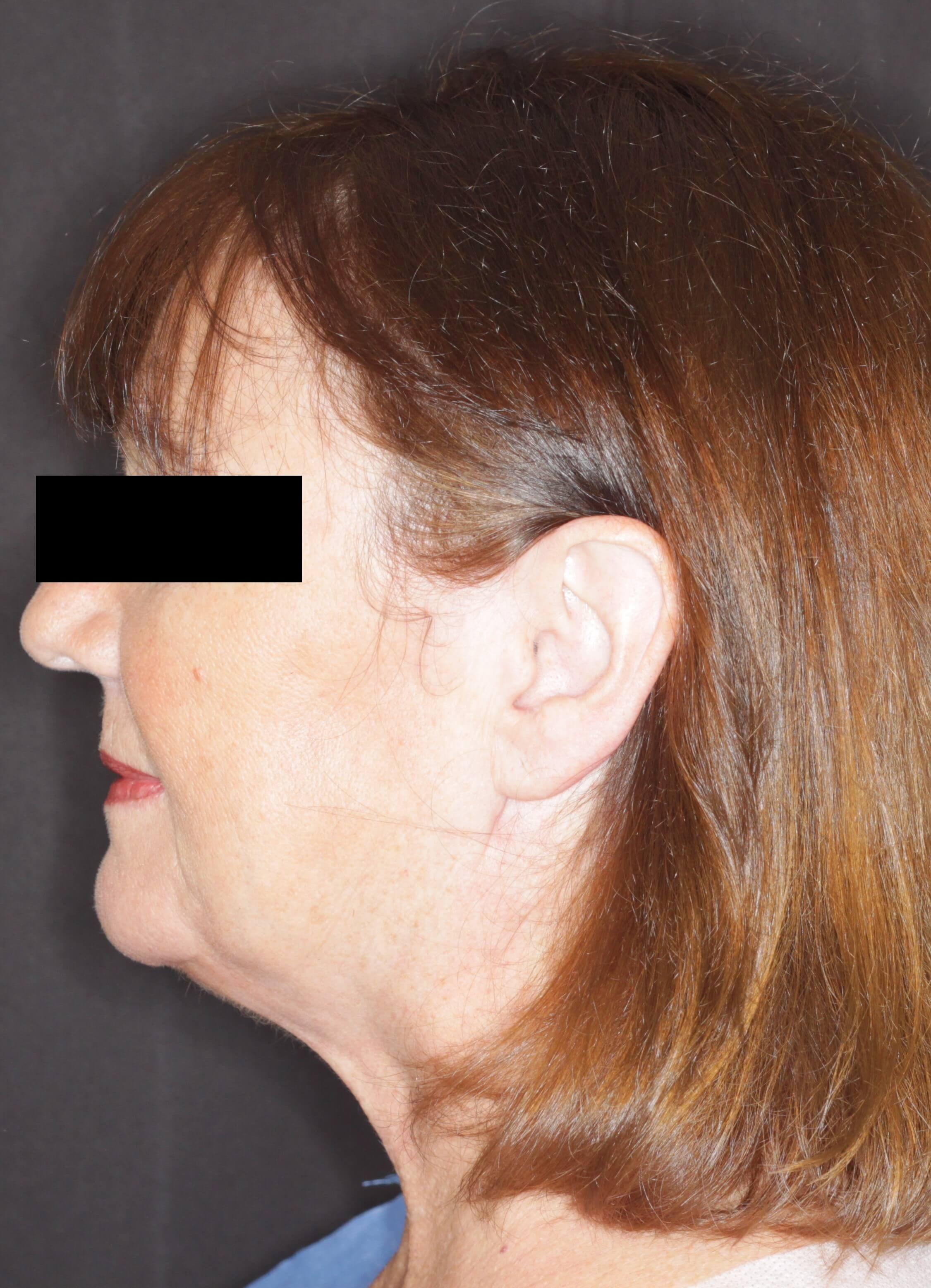 JPlatzy Face Lift (JPlasma) After