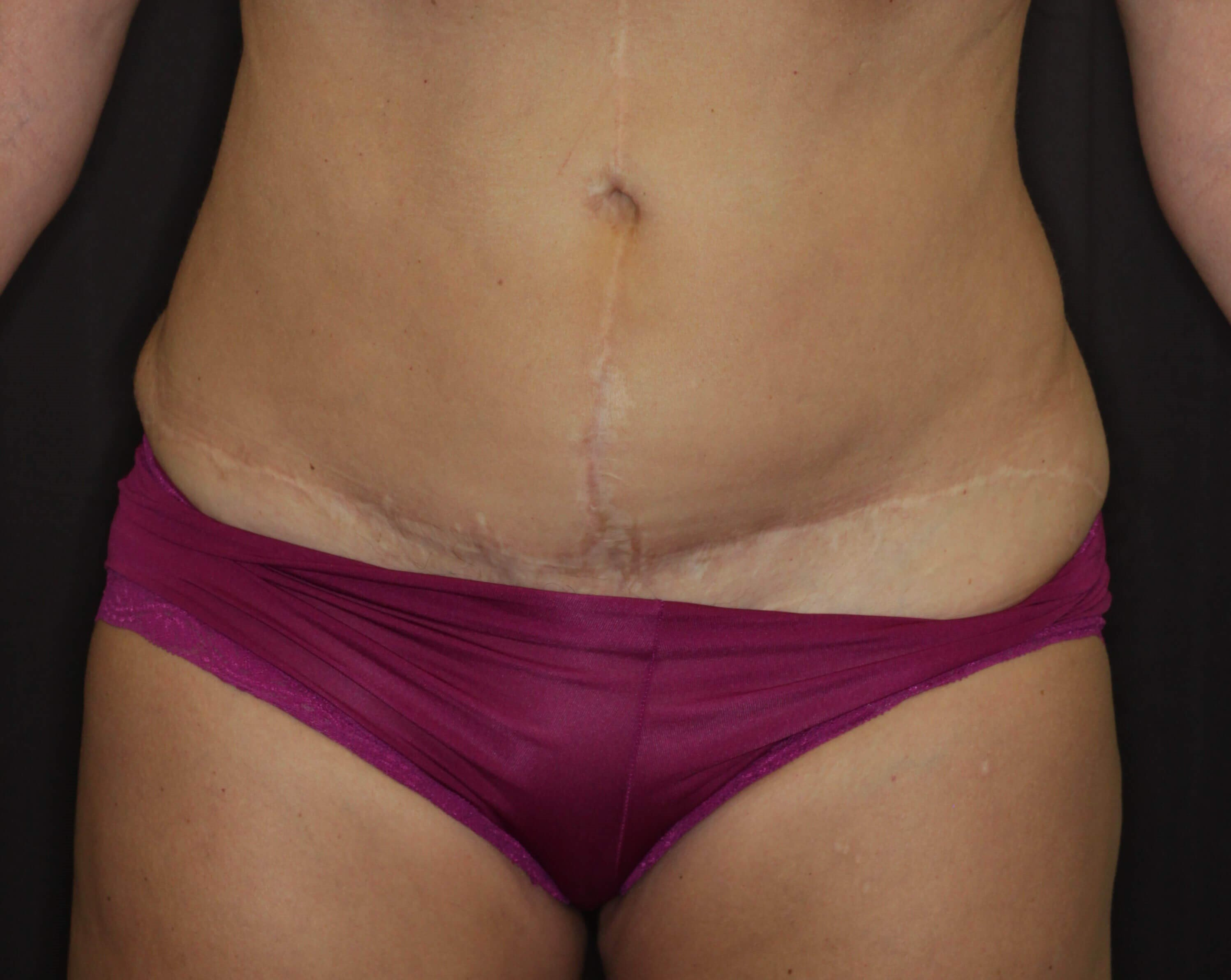 Anterior View Liposuction Before