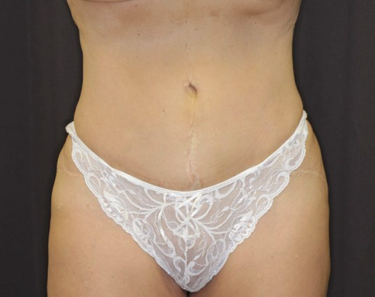 Anterior View Liposuction After