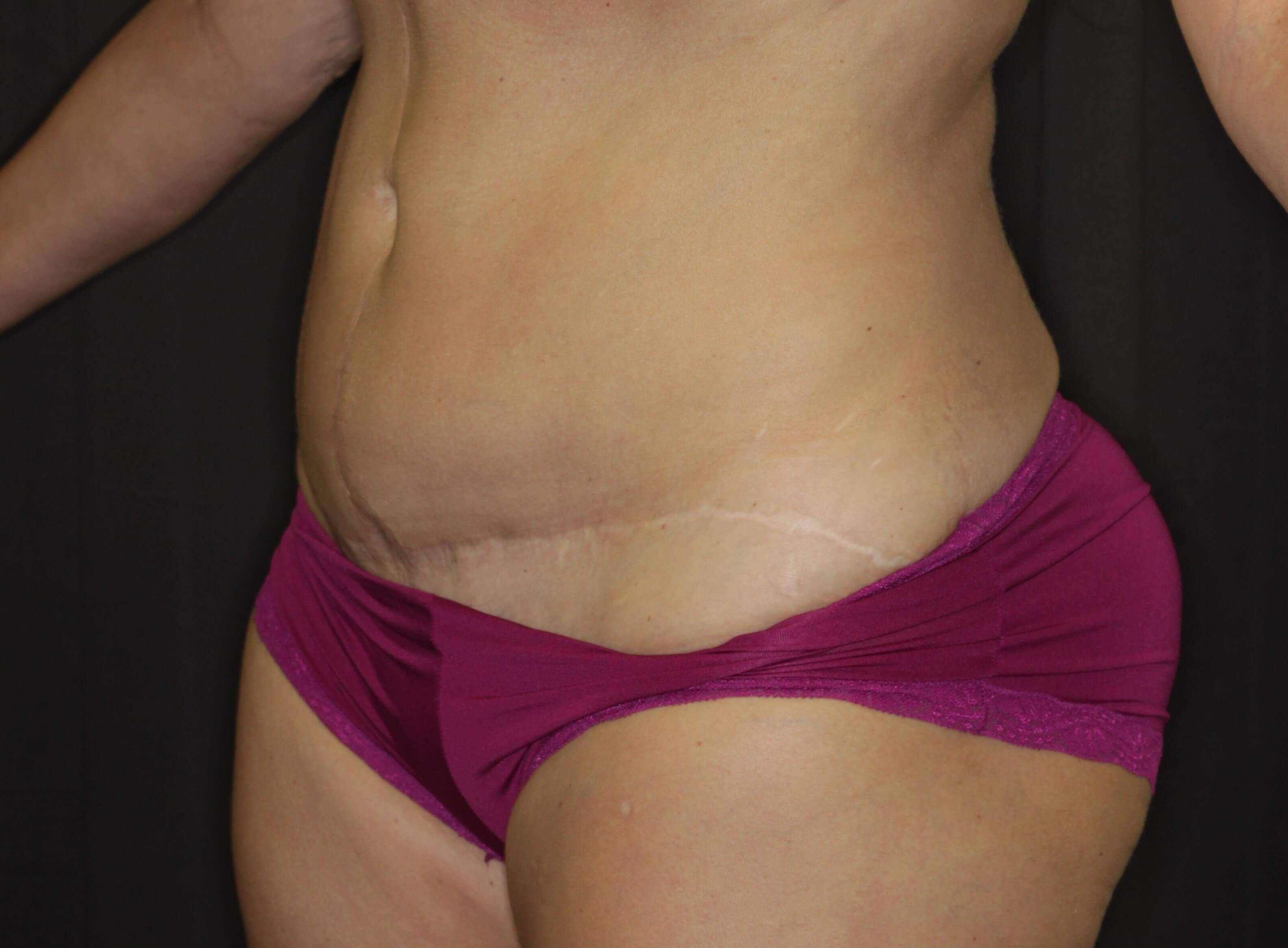 Left Lateral Liposuction Before
