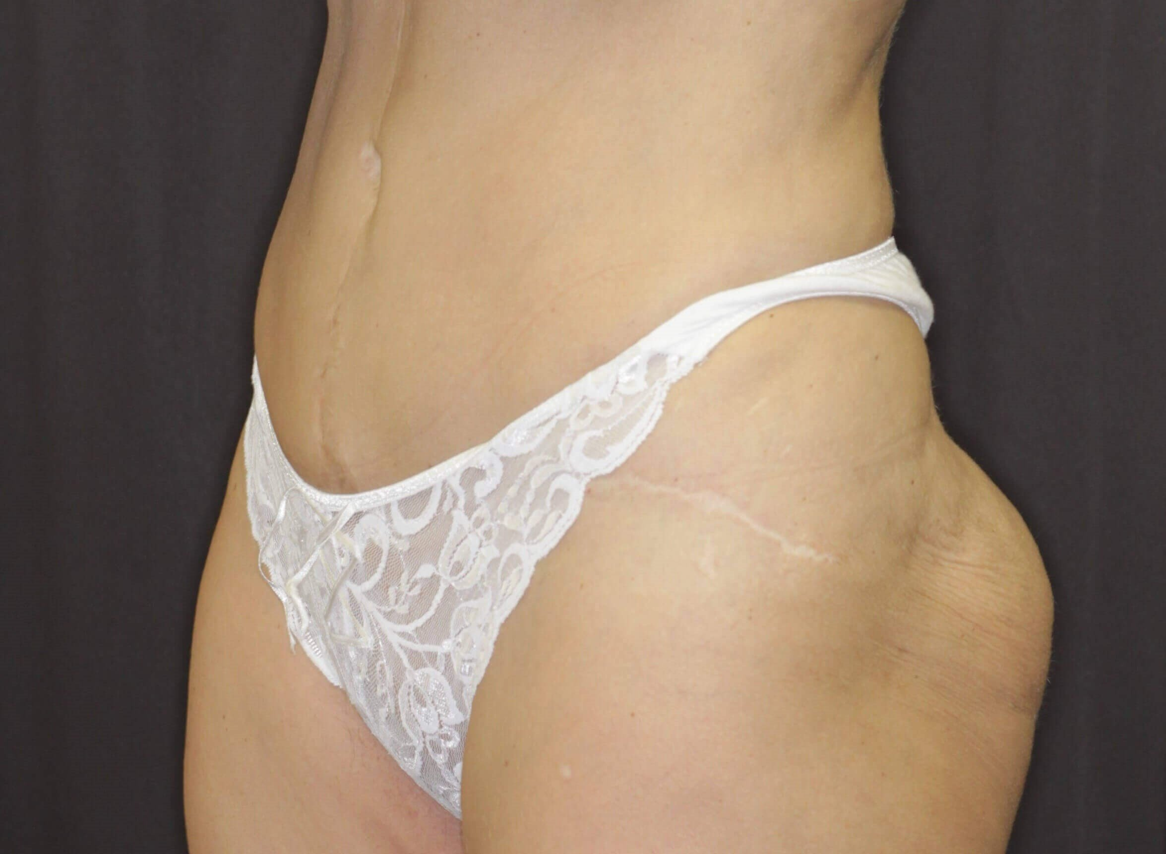 Left Lateral Liposuction After