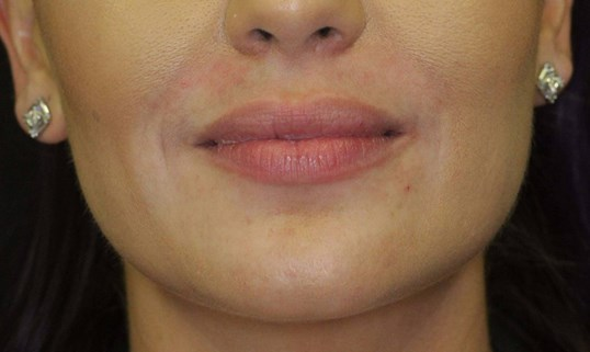 Fuller Lips By Maria, ARNP Before