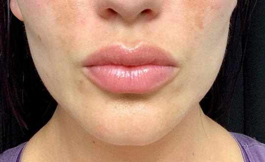 Fuller Lips By Maria, ARNP After