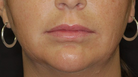Lip Injections by Maria, ARNP Before
