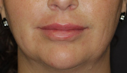 Lip Injections by Maria, ARNP After