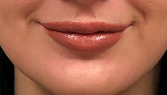 Juvederm For Fuller Lips After