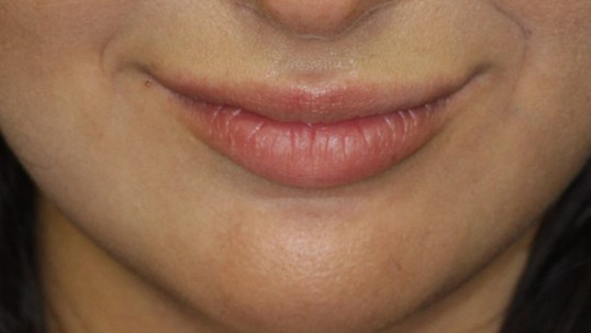 Juvederm For Fuller Lips Before