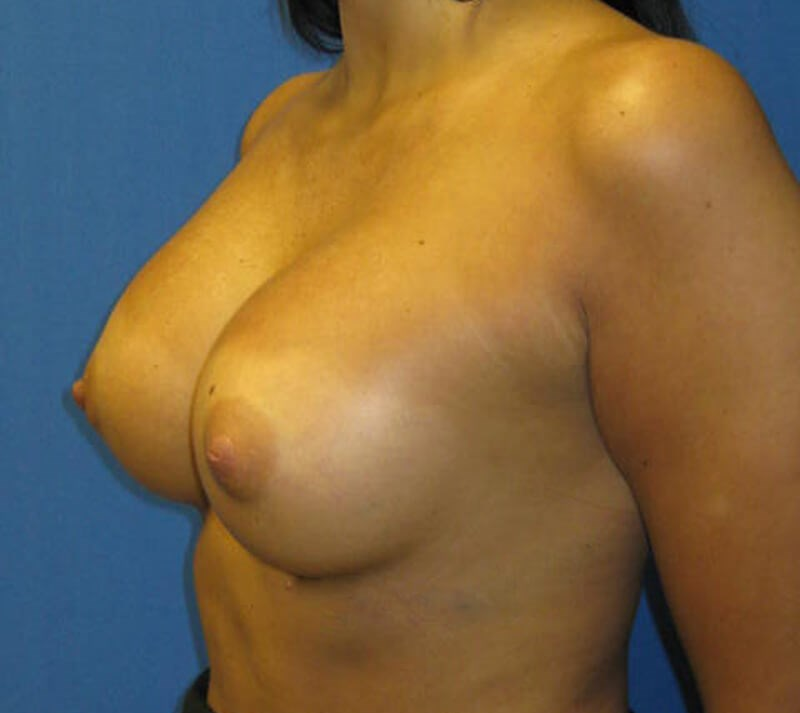 Angled view of the breasts After