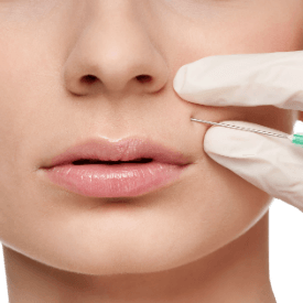 Juvéderm® Injectables Image