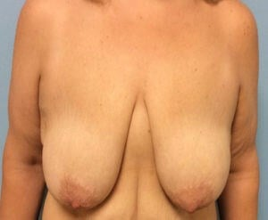 Breast Reduction Front View Before Breast Reduction