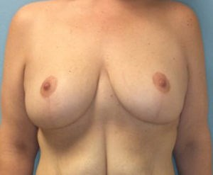 Breast Reduction Front View After Breast Reduction