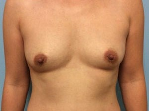 Breast Augmnetation Results Before Breast Augmentation