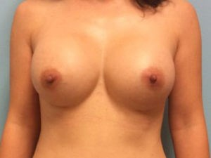 Breast Augmnetation Results After Breast Augmentation