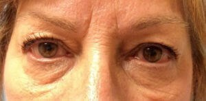 Eyelid Lift Results Before Eyelid Lift