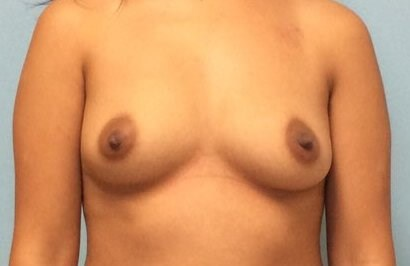 Breast Augmentation Results Before Breast Augmentation