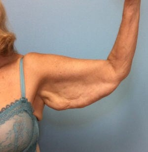 Arm Lift Results Before Arm Lift