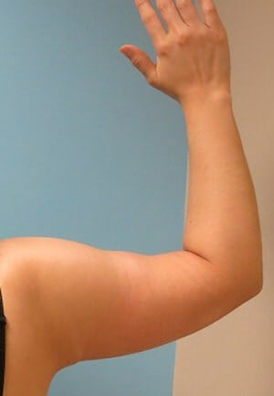 Arm Lift Results After Arm Lift