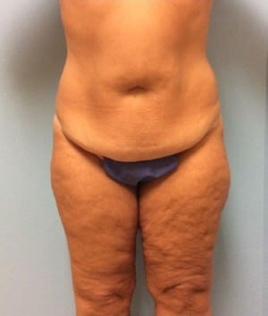 Body Lift Results Before Body Lift
