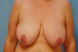Breast Lift Results Before Breast Lift