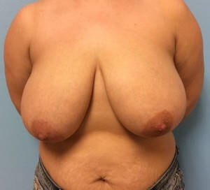 Breast Reduction Results Before Breast Reduction