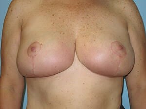Breast Reduction Results After Breast Reduction