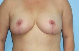 Breast Reduction Results After