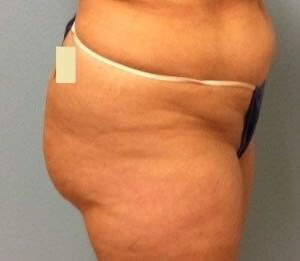 Buttock Lift Results Before Buttock Lift