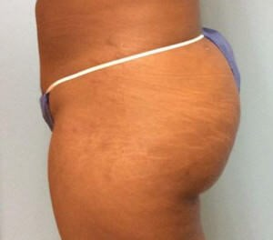 Buttock Lift Results After Buttock Lift