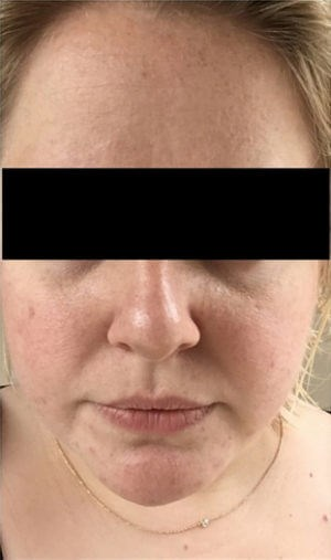 Chemical Peel Results Before Chemical Peel