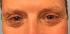 Eyelid Lift Results After Eyelid Lift