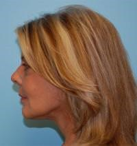 Face and Neck Lift Results After Face and Neck Lift