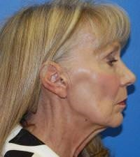 Face and Neck Lift Results Before Face and Neck Lift
