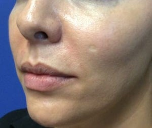 Filler Results After Filler