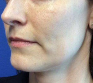 Filler Results Before Filler